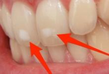صورة إذا لم تكن مدخنًا.. لا تتجاهل بقع الأسنان لهذه الأسباب