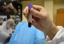 صورة دم يسيل من جثة مهر مات منذ 42 ألف عام.. إليك تفاصيل المعجزة