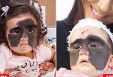 """صورة تفاصيل الجراحة العلاجية لطفلة """"وحمة باتمان"""" الأمريكية في روسيا"""
