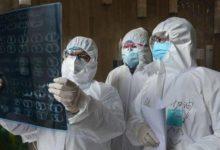 صورة تقارير أمريكية: غير المسنين المصابون بكورونا يتوفون بسبب «السكتات الدماغية»