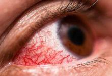 صورة طبيب يحذر: احمرار العين علامة مبكرة على إصابتك بكورونا