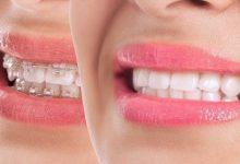 صورة سبب غير متوقع في الأسنان يسبب الصداع.. ما هو؟