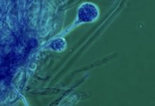صورة كيف يدخل الفطر الأسود إلى الدماغ؟