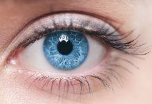 صورة علامات في العين تدل على ارتفاع الكوليسترول
